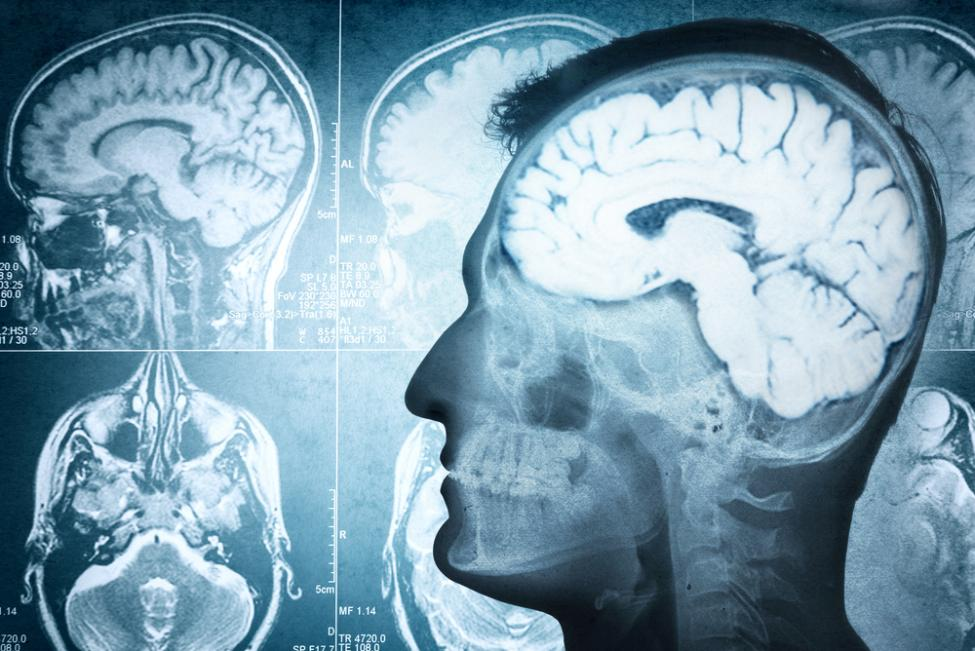 Study Shows How Brain Injury Causes Post-Traumatic Stress Disorder